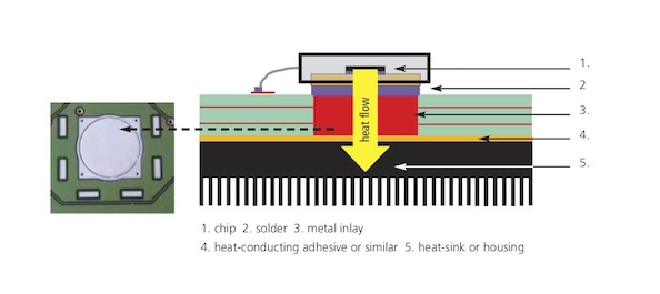 Metal Inlay Technology